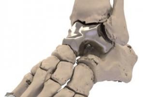 首创的替代距骨的植入物由3D打印出品